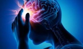 خطوات تكشف الإصابة بالسكتة الدماغية
