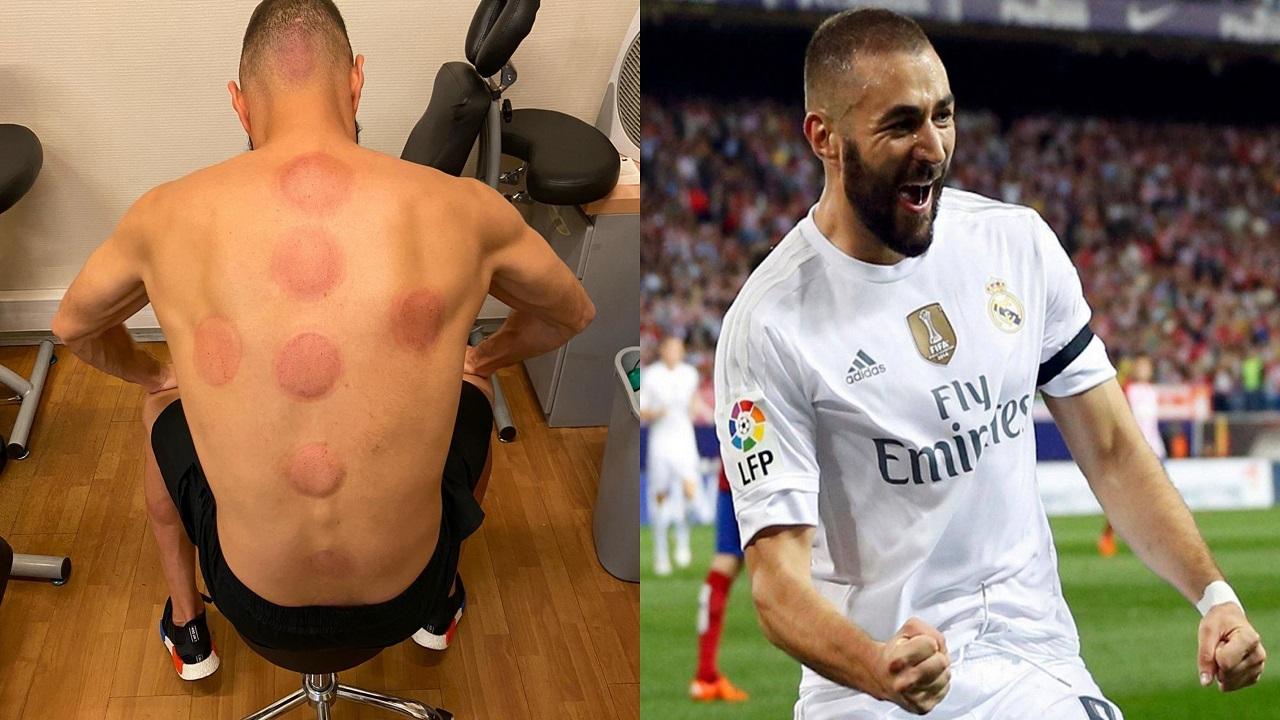 لاعب ريال مدريد يخوض تجربة التعافي بالحجامة