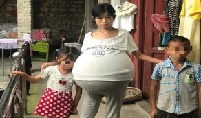 بالصور.. فتاة تعاني من تضخم غريب بالبطن بوزن 20 كجم