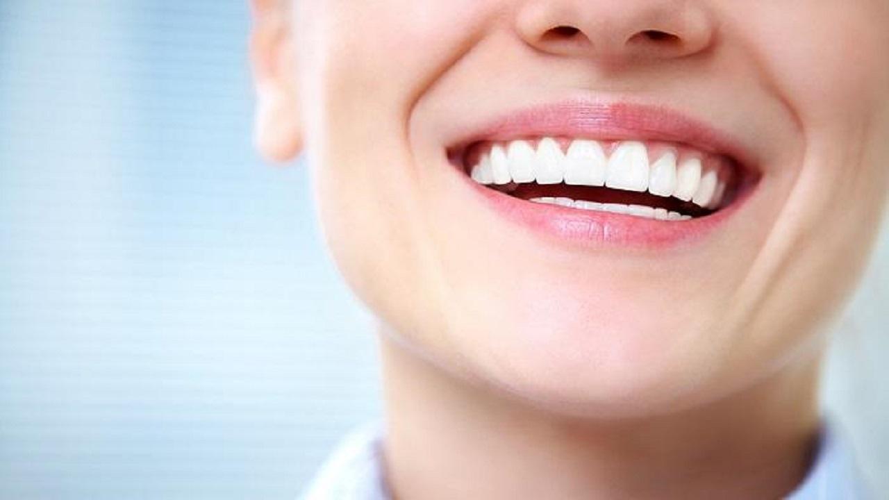 بياض الأسنان قد يكون مؤشرًا لتسوسها