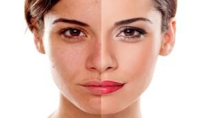 «الغذاء والدواء» تحذر: إستخدام كريم الكورتيزون لتبييض البشرة يسبب 4 أعراض خطيرة