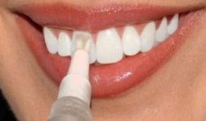 بالفيديو.. انتشار تحدِ خطير يُدمر الأسنان