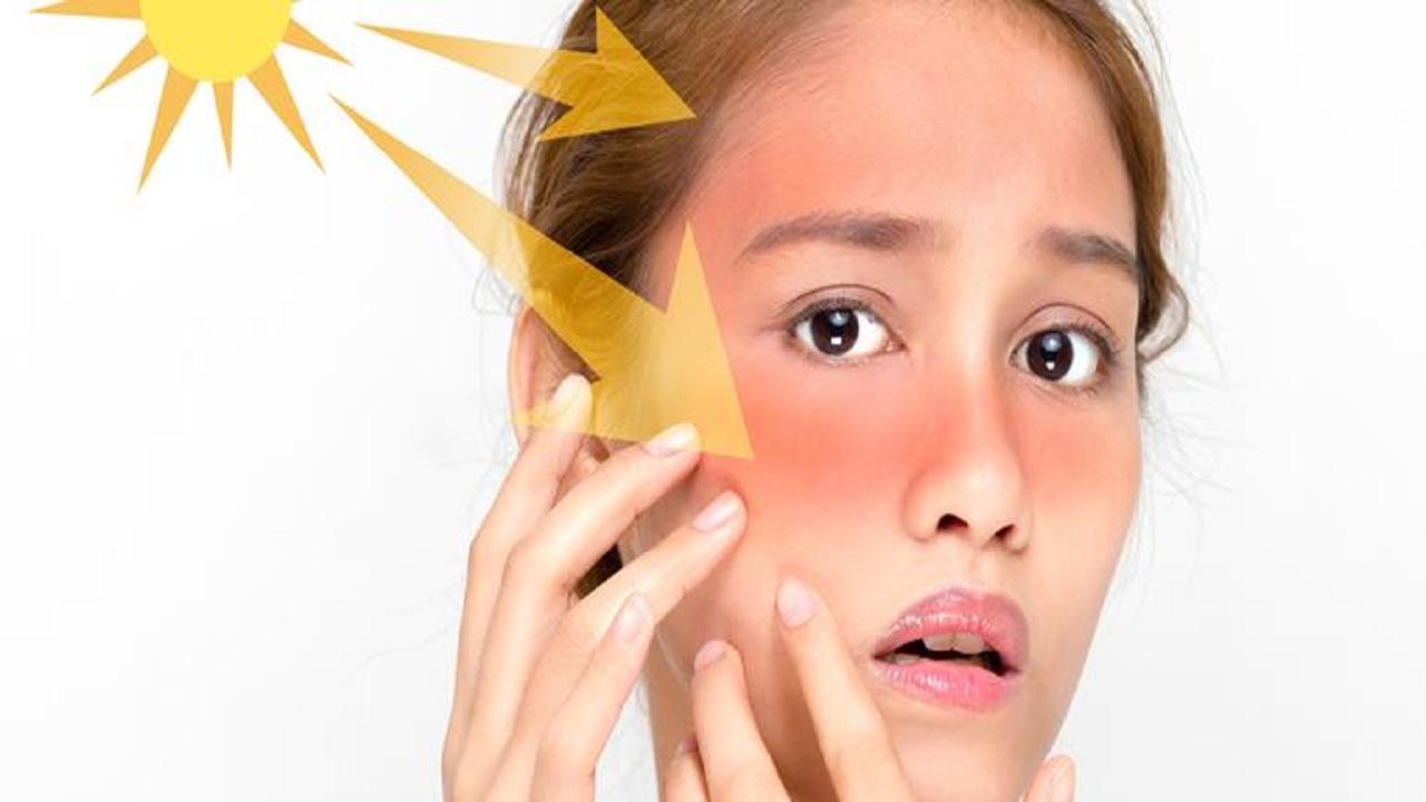 4 أطعمة تحمي الجلد من أشعة الشمس