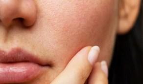 5 خطوات سهلة للتخلص منالإفرازات الدهنية بالوجه