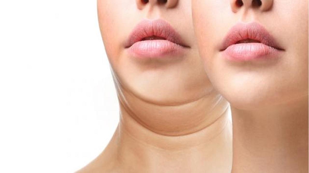 أسباب تؤدي لظهور الذقن المزدوج لدى المرأة