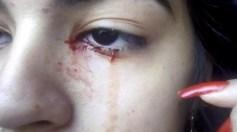 فتاة تبكي دما بدلا من الدموع وتثير حيرة الأطباء
