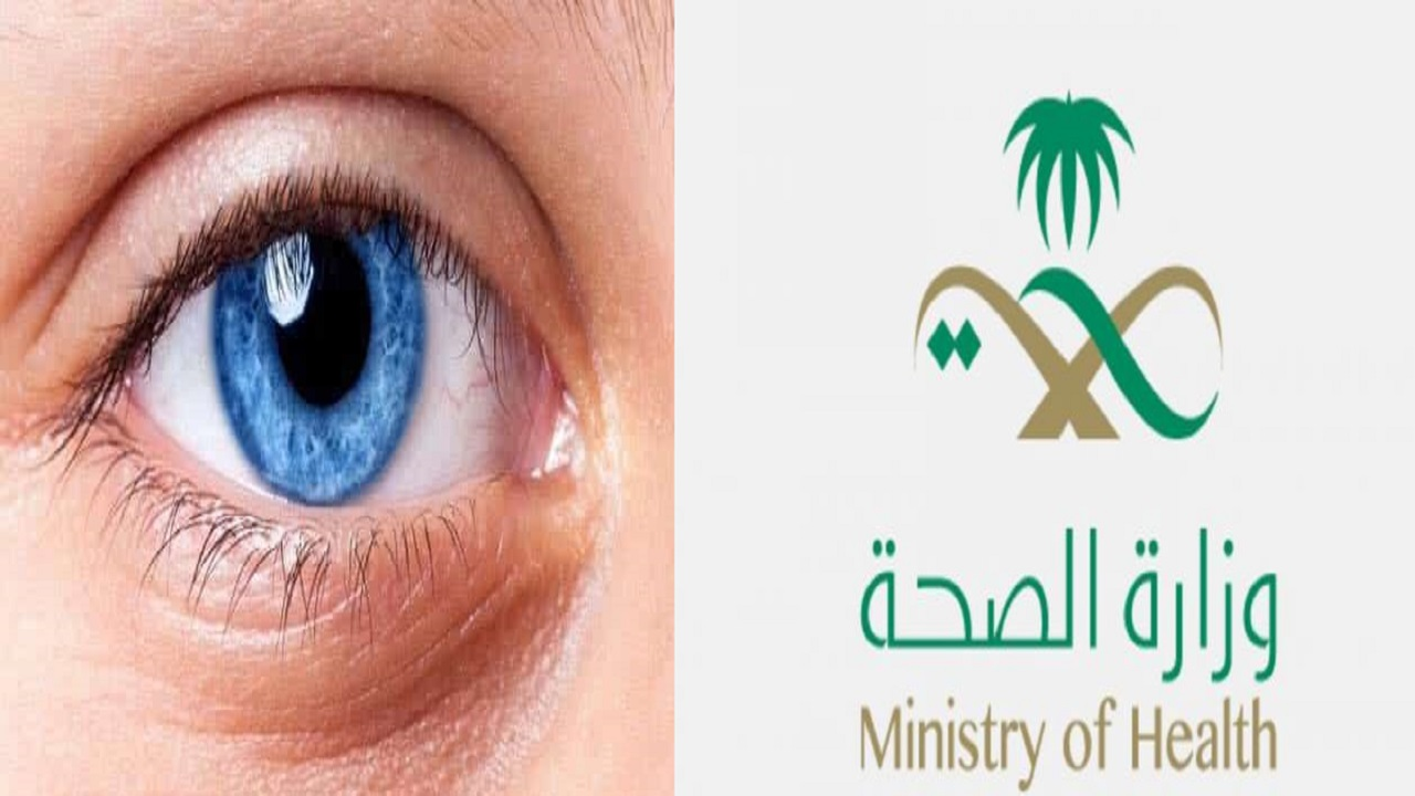 """""""الصحة"""" تنشر إنفوجرافيك تعريفيًا لأهم فحوصات العيون في مرافقها الصحية"""