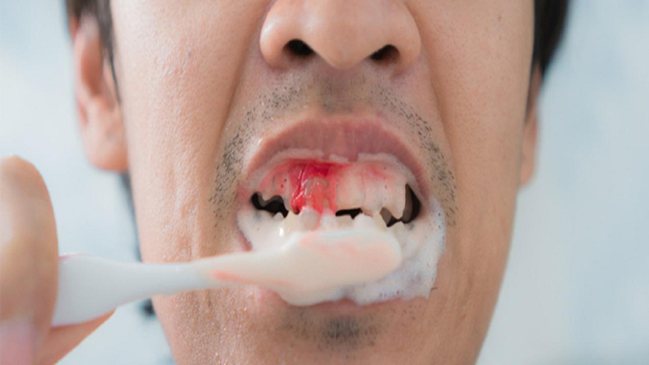 أسباب نزيف اللثة عند غسيل الأسنان وطرق الوقاية منه