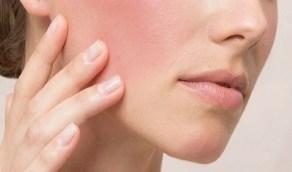 معلومات غريبة عن أمراض جلدية قد تعرفيها لأول مرة