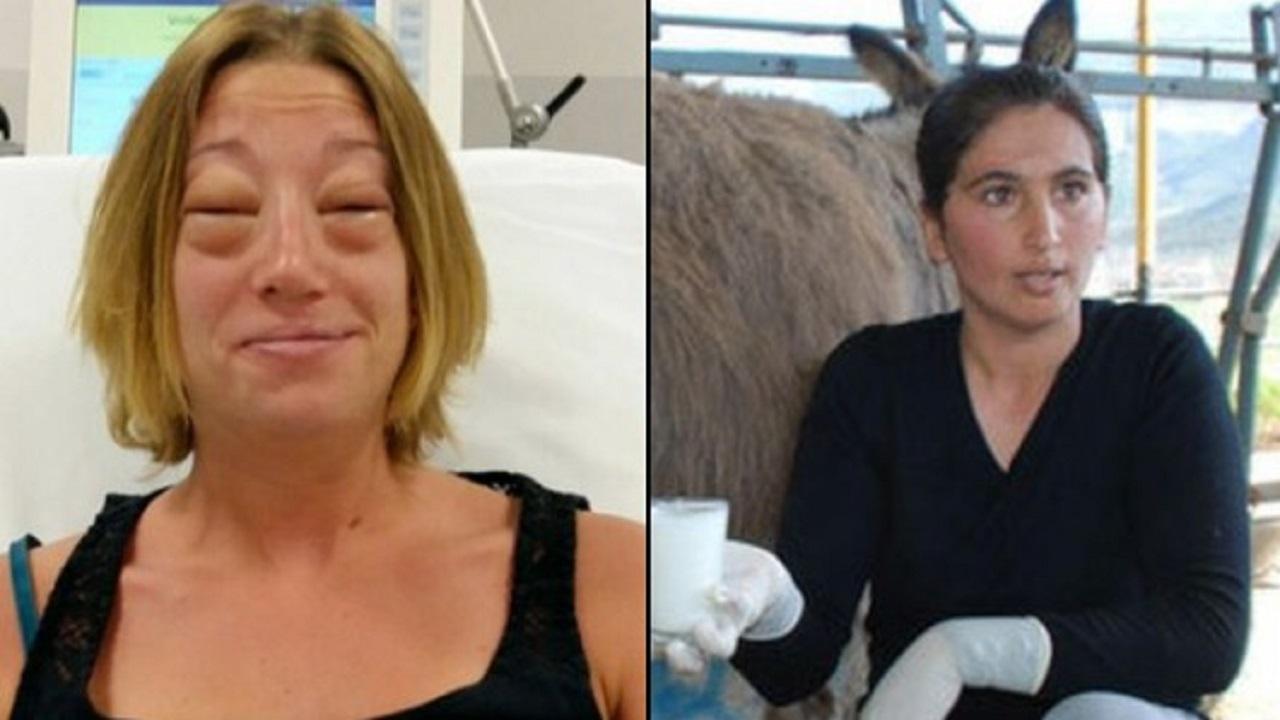 لبن الحمير يشوه وجه امرأة تركية بعد 5 دقائق من شربه