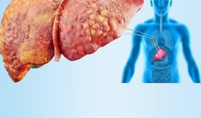 بالفيديو.. طبيب يوضح أسباب دهون الكبد والطرق العلاجية لتنظيفها