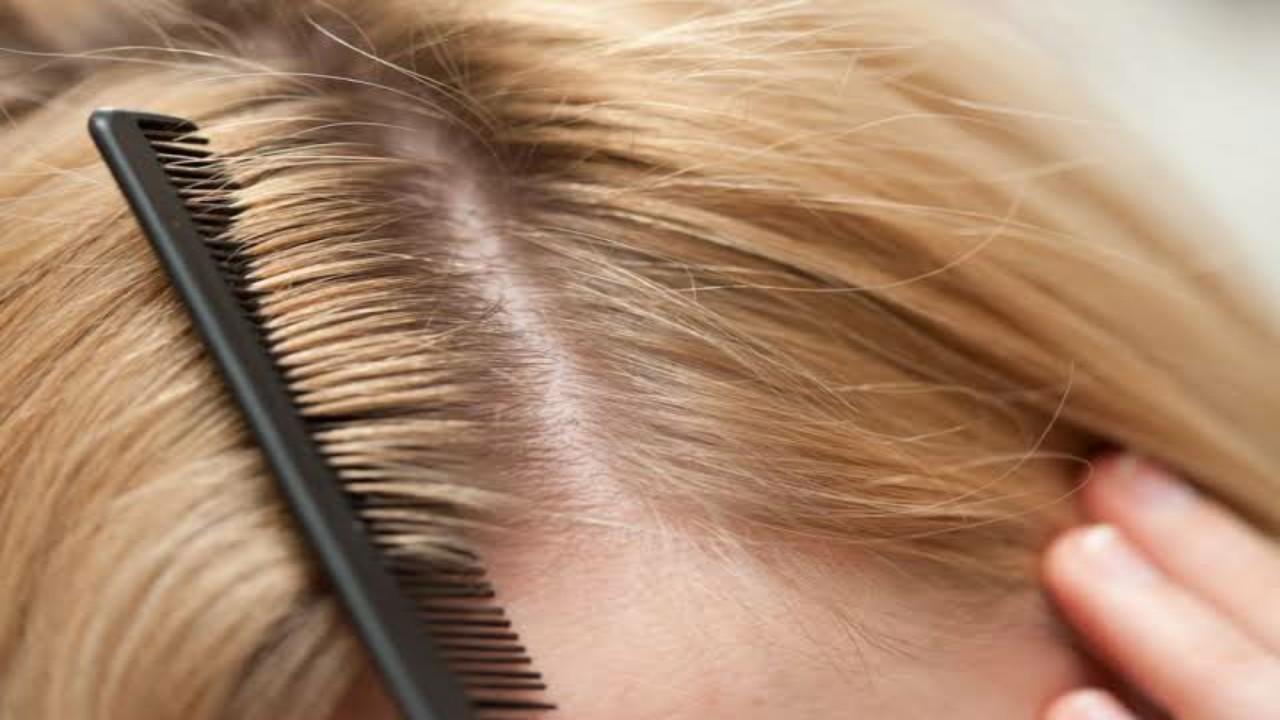 خلطةبيكربونات الصودا لتفتيح لون الشعر