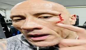 """بالفيديو.. """"ذا روك"""" يتذوق دمه بعد إصابته: مثل الصلصة الحمراء"""