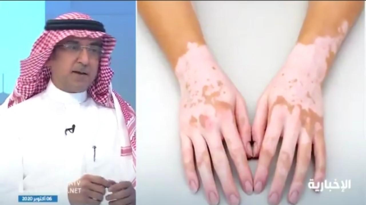 بالفيديو.. استشاري أمراض جلدية: البهاق لا ينتقل بالعدوى