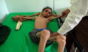 مليشيا الحوثي تقصف مستشفى سرطان بتعز ومطالبات بتحرك دولي