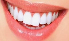 طبيب تجميل يحدد أسرع طريقة لتبييض الأسنان
