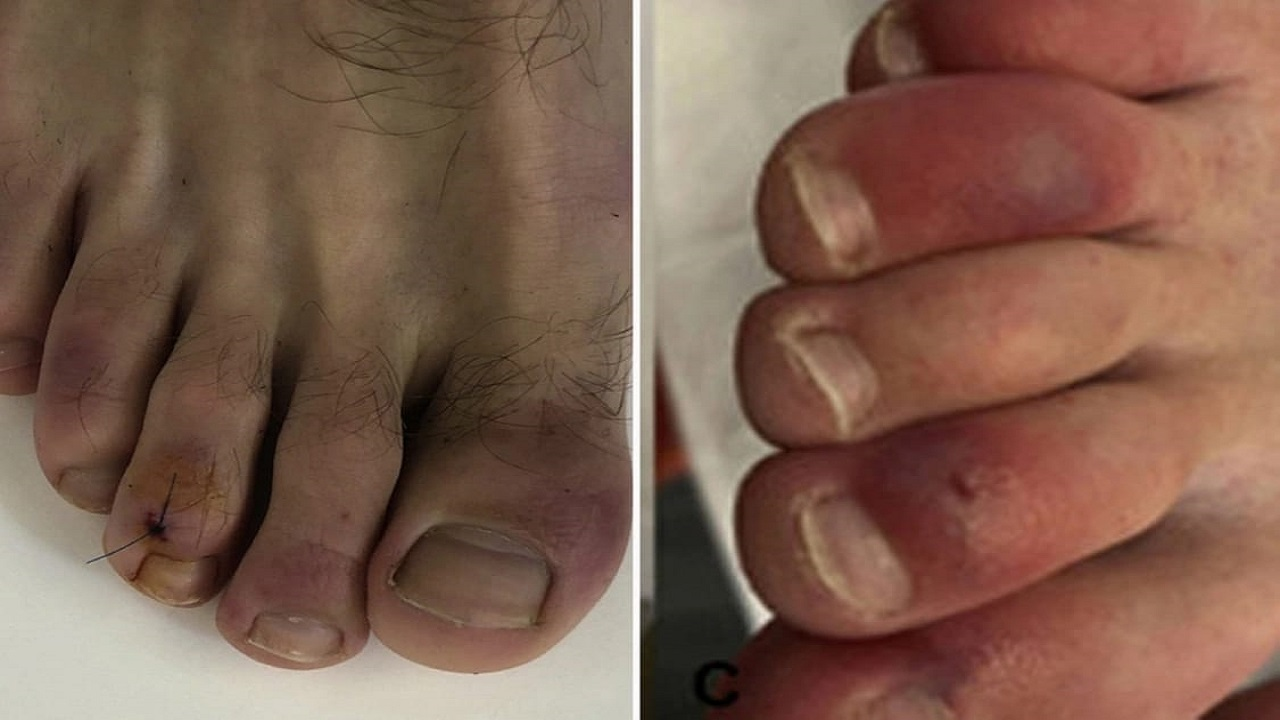 أطباء يوضحون علاقة تورم أصابع القدم بفيروس كورونا