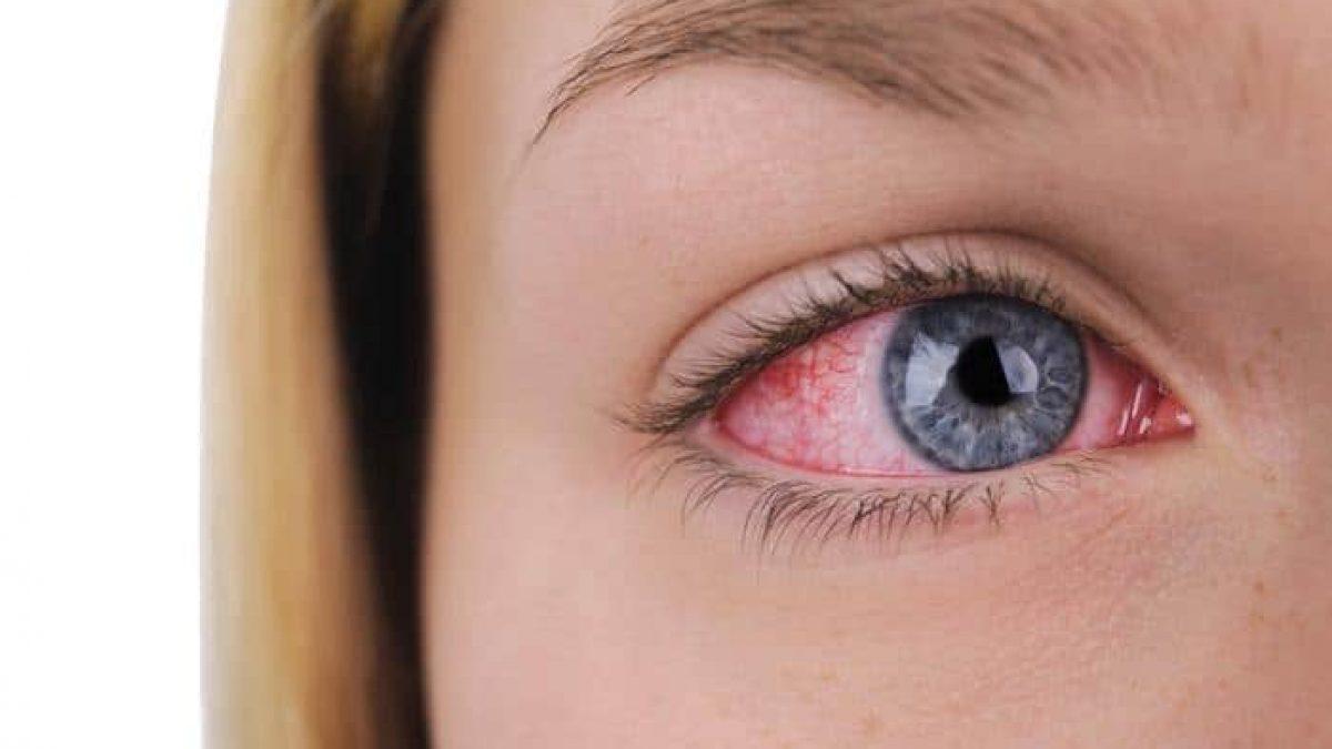 بالفيديو .. أبرز أسباب جفاف العين