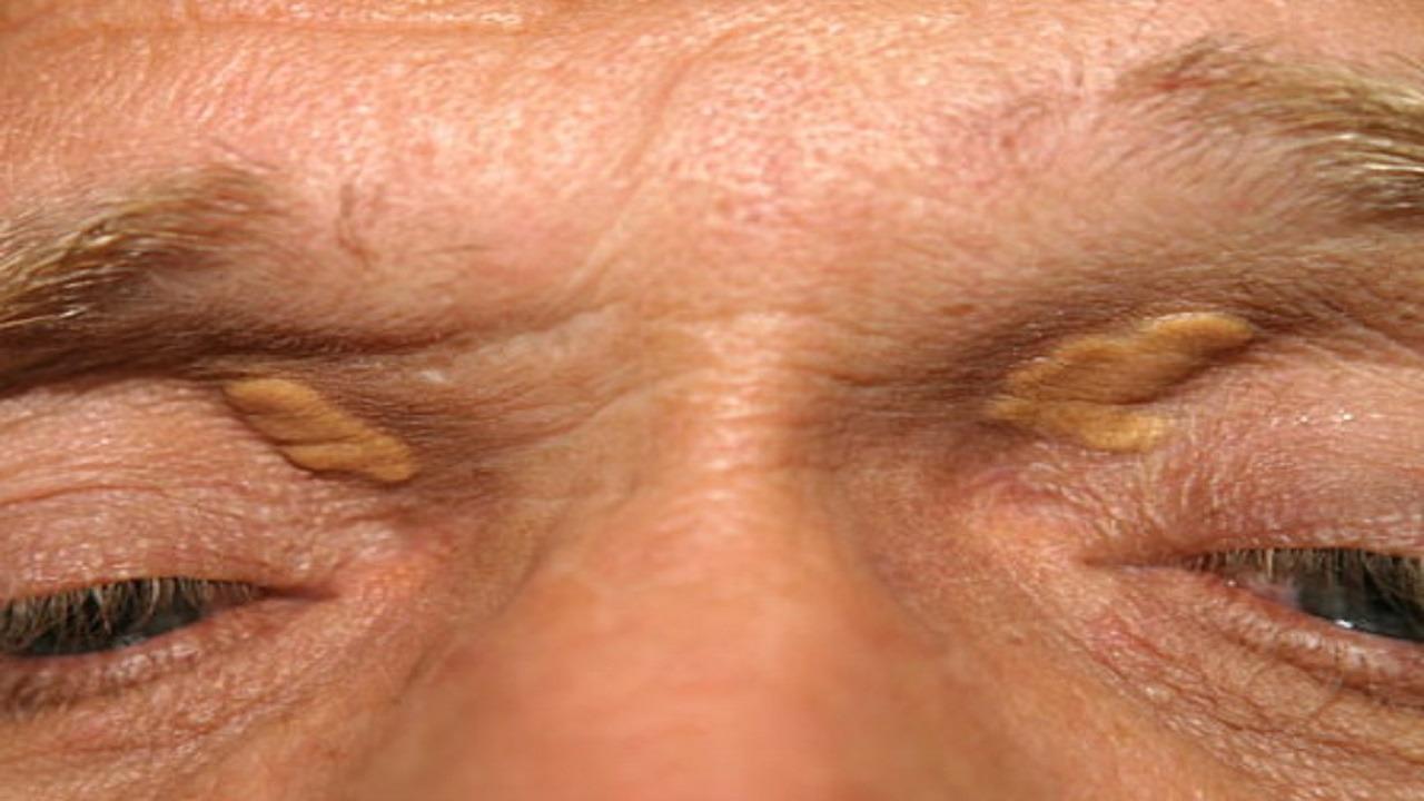 علامة في الجلد تدل على الإصابة بارتفاع نسبة الكوليسترول في الدم