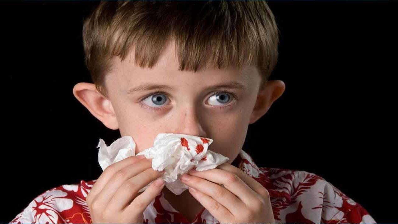 6 خطوات يجب مراعاتها لإيقاف نزيف الأنف لدى الأطفال