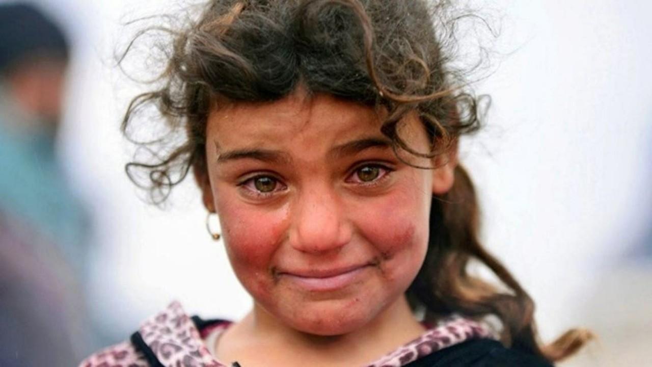 قصة الطفلة التي هزت مشاعر الملايين بسبب ابتسامتها الباكية