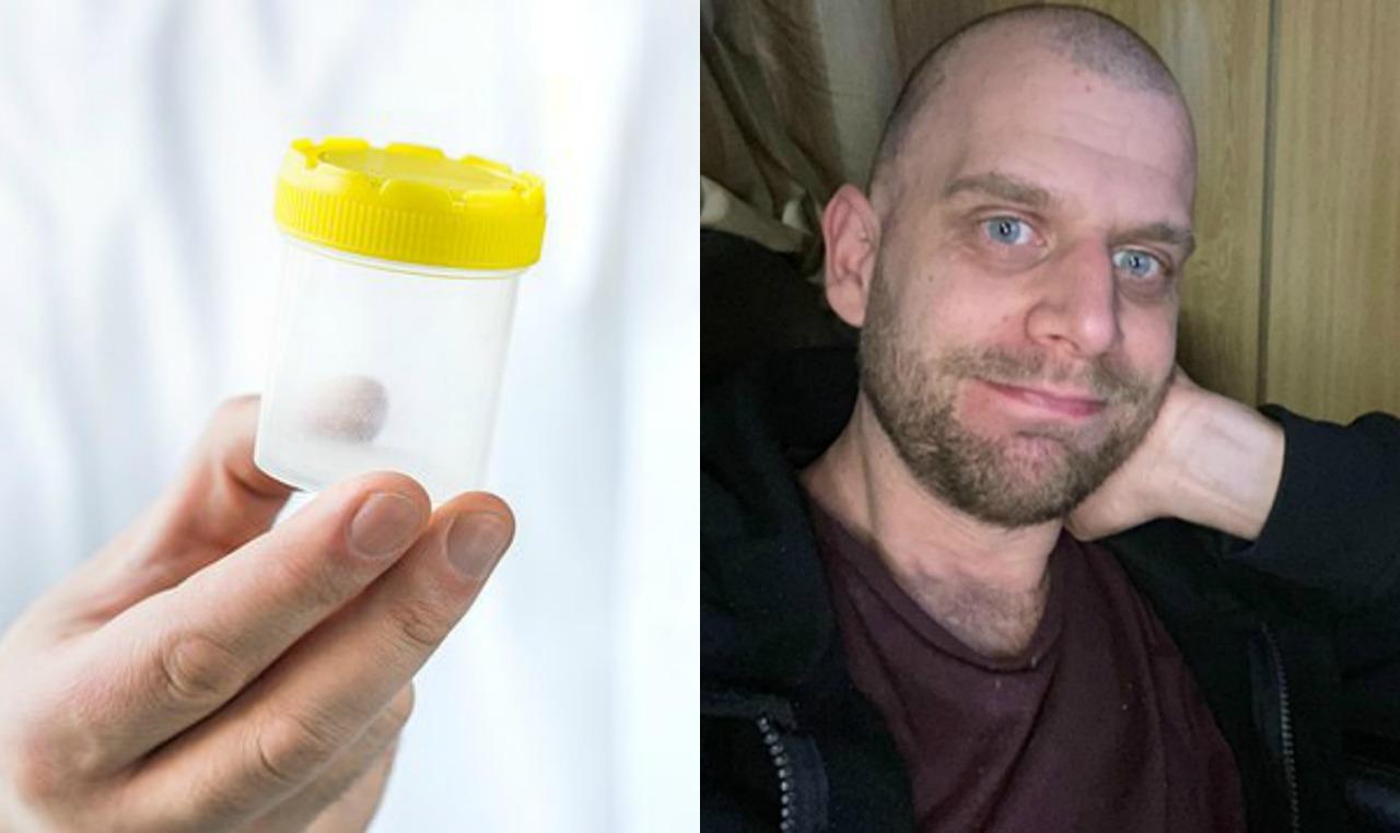 رجل يتبرع بـ «حيواناته المنوية» بعد إصابته بالاكتئاب  (صور)