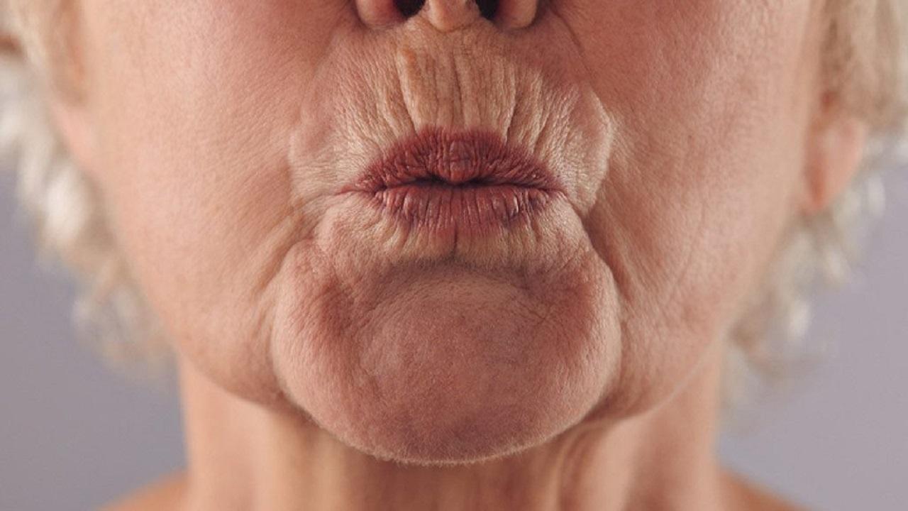 زيوت تساعد في التخلص من تجاعيد الفم