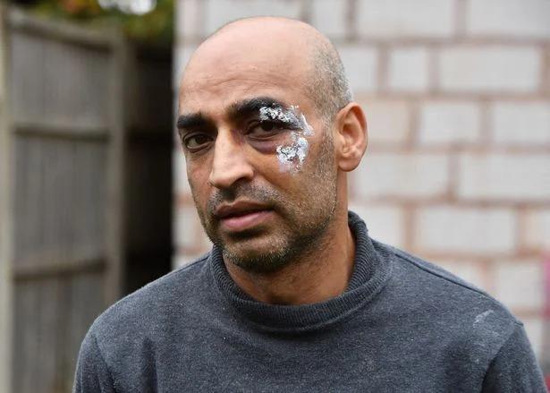 سيناريو العنصرية مستمر.. 3 رجال يعتدون على مسلم في بريطانيا