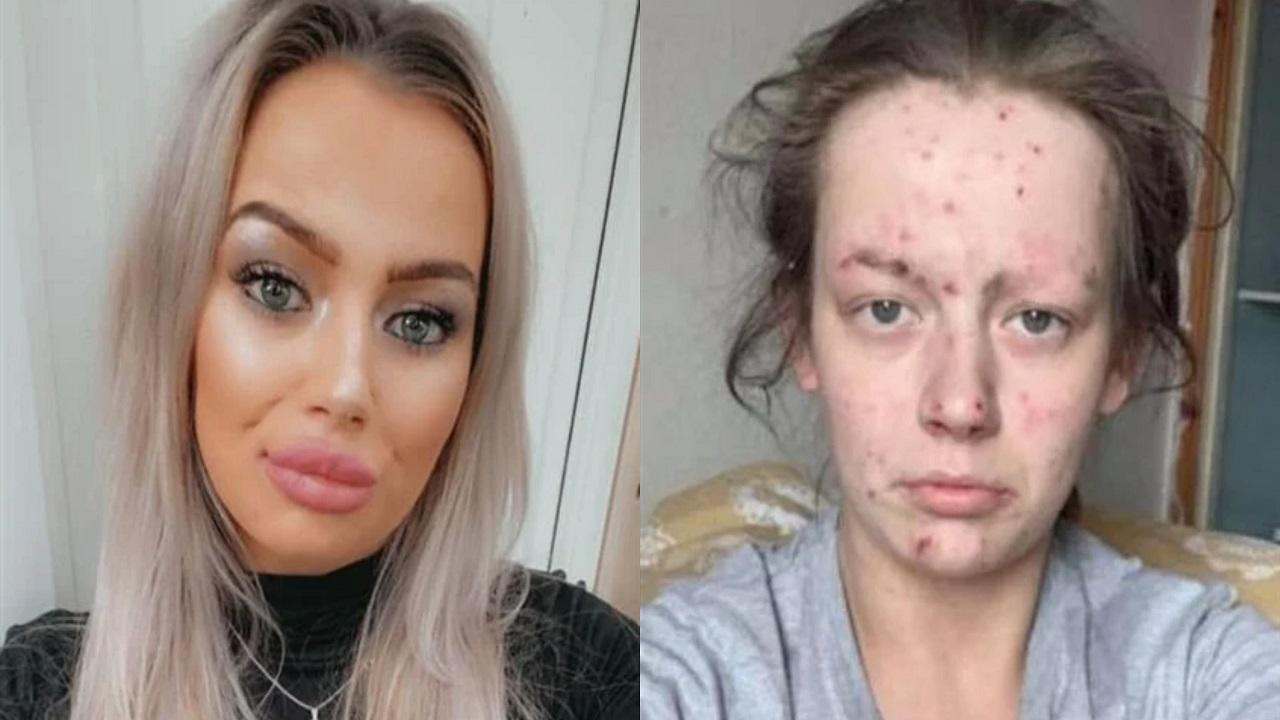 بالصور..مدمنة مخدرات قبل وبعد التعافي