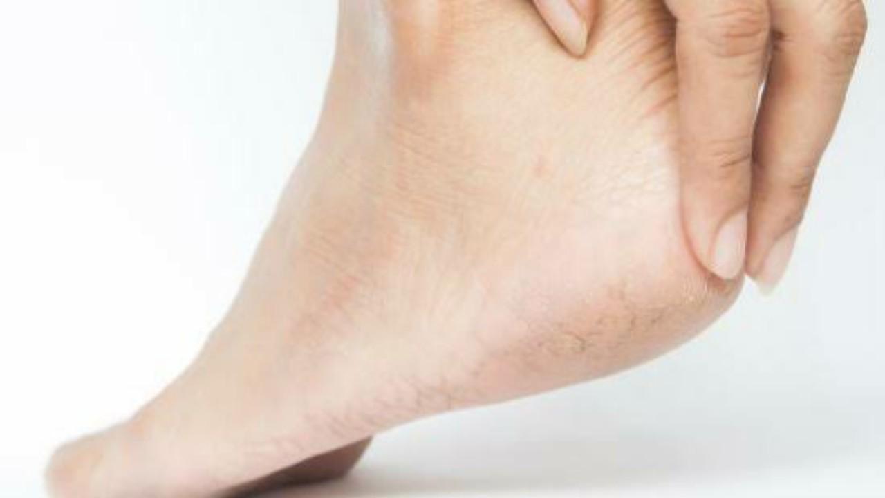 وصفة طبيعية لعلاج تشققات القدمين