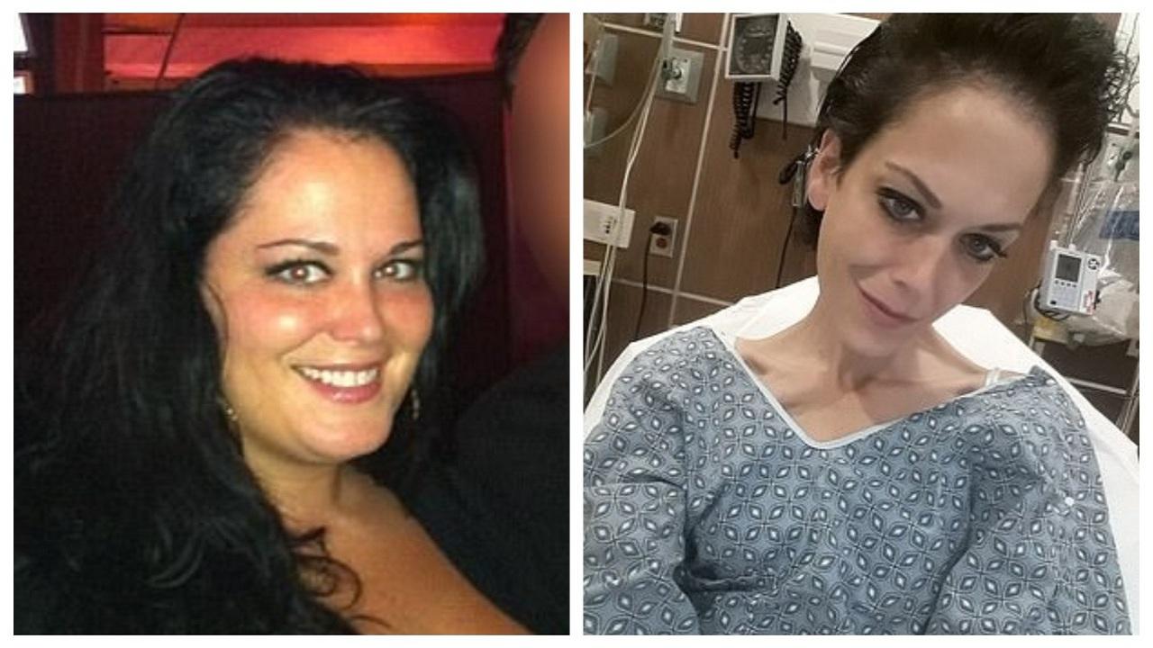 """عملية تكميم تحول حياة امرأة سمينة إلى جحيم: """" لم أستطع شرب الماء"""""""