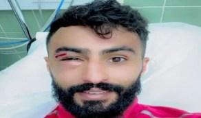إصابة أحمد الحبيب نجم أبها في العين اليمنى