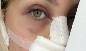 """الدكتورة خلود بعد عملية التجميل: """" بس يخف الورم راح أطلعلكم بالنيولوك """""""