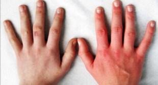 المجلس الصحي : 3 حالات لزيارة الطبيب أثناء انخفاض درجات الحرارة