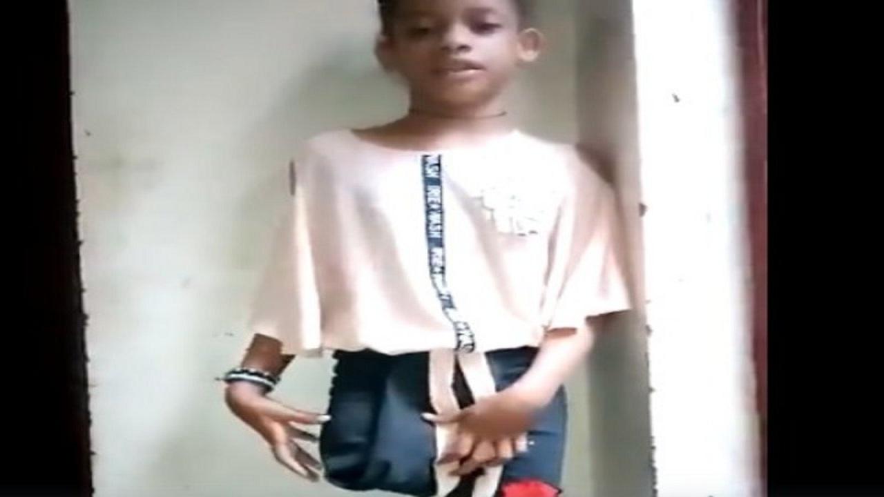 بالفيديو.. مأساة فتاة فقدت ساقها جراء قصف حوثي