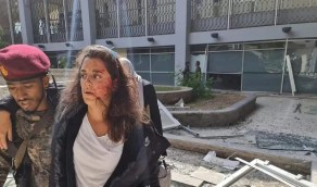 """لبنانية أصيبت في إنفجار عدن لليمنيين: """" لا أبعد عنكم كثيرا على خارطة المآسي """""""