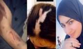 بالفيديو..أميرة الناصر تنشر مشاهد صادمة تؤكد تعرضها للتعنيف