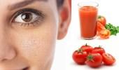 """"""" الطماطم"""" تساعد على التخلص من المسام الواسعة بوجهك"""