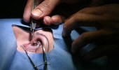 بالفيديو.. طبيب عيون: عمليات يُمنع صاحبها من الركوع والسجود
