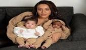 بالصور.. امرأة تنجب طفلتين توأم بلوني بشرة مختلفين