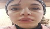 فتاة تتعرض للتحرش والضرب أمام المارة بالشارع