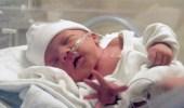 امرأة تلد طفلا بدون بطن في حالة نادرة