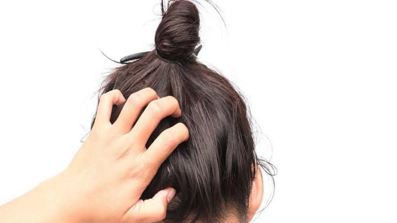 أشياء تؤدي إلى الإصابة بالقشرة وحكة الرأس