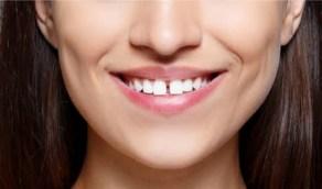 أسباب ظهور فراغات الأسنان