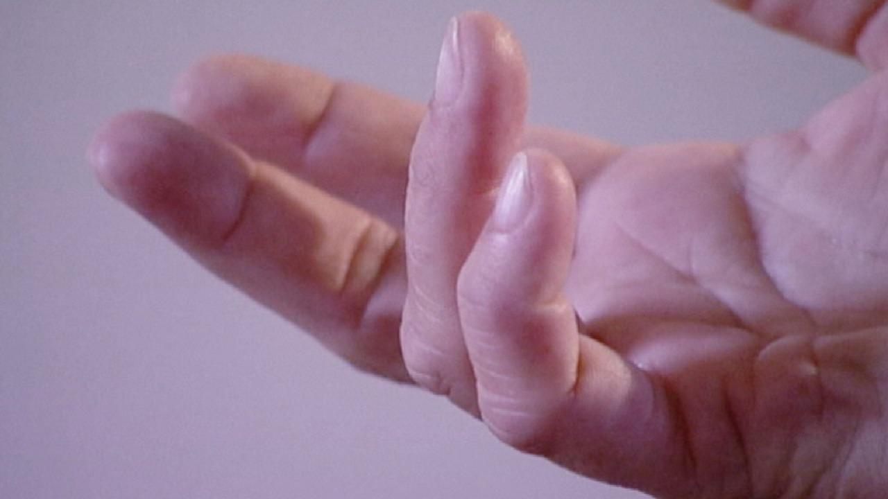 تغير شكل الأصابع من علامات الإصابة بسرطان الرئة