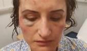 الاعتداء على سيدة وطعنها في وجهها على يد طليقها