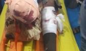 """انفجار لغم حوثي يتسبب في إصابة مهندس بمشروع """"مسام"""" السعودي"""