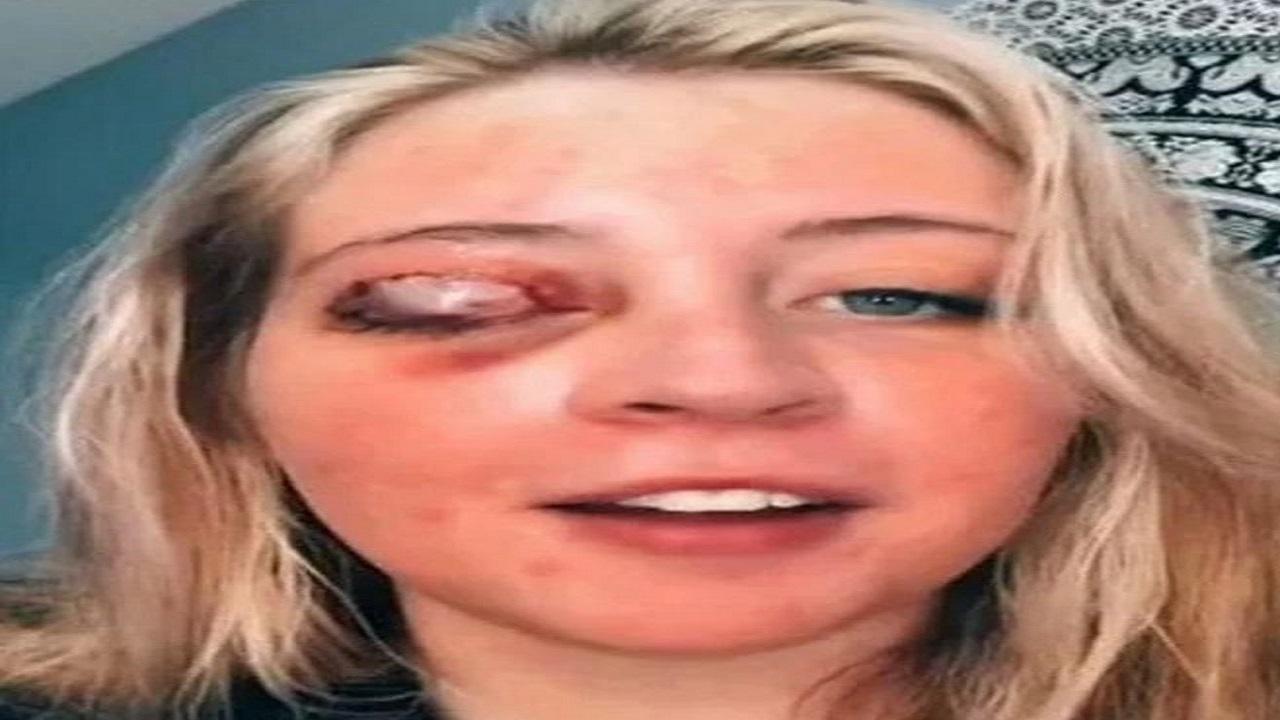 كلب يفقأ عين فتاة بسبب رموش اصطناعية