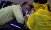 تسجيل أول إصابة بـ«الفطر الأخضر» في الهند