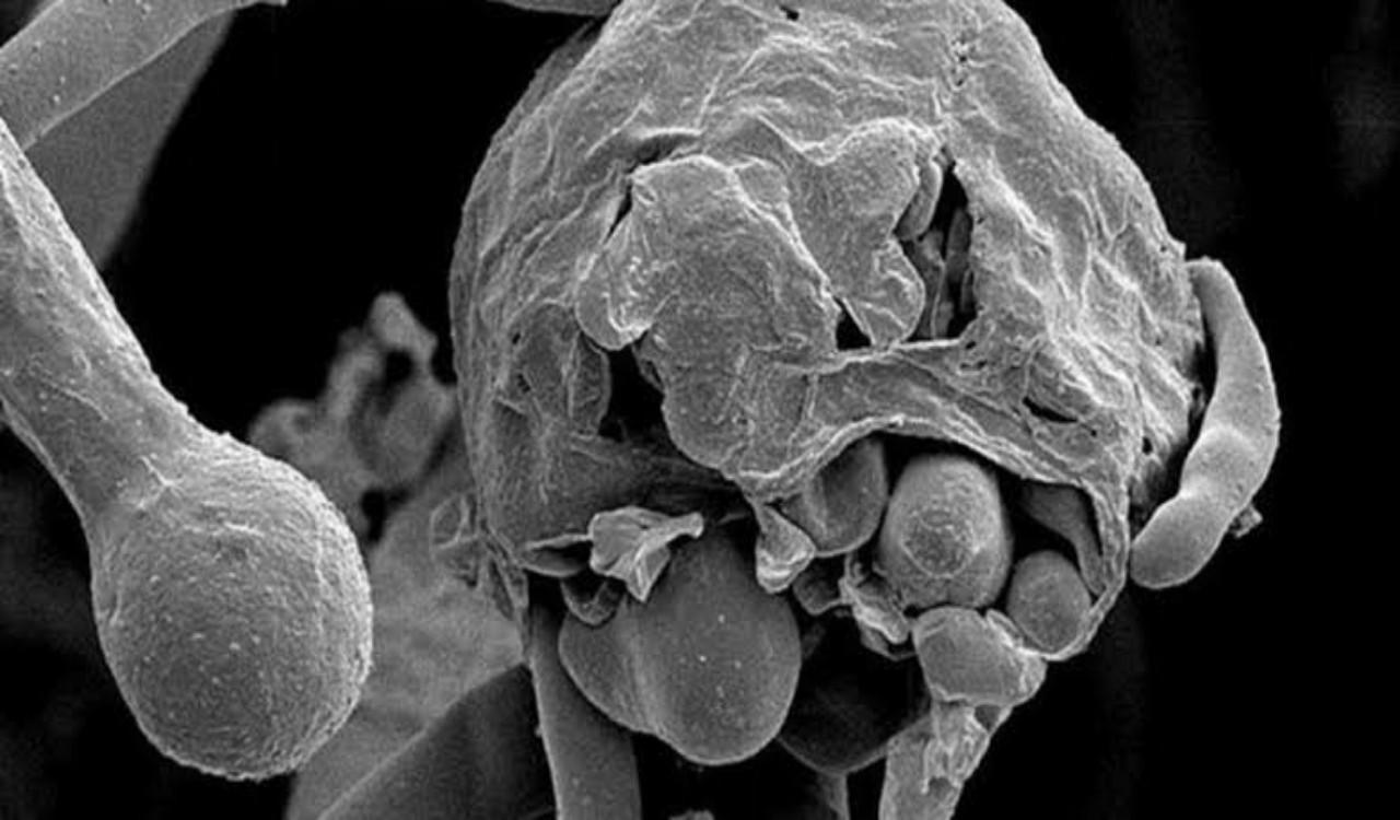 الصحة العالمية: الفطر الأسود لا يمثل تحديًا صحيًا